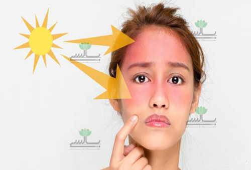 عکس-درمان-آفتاب-سوختگی