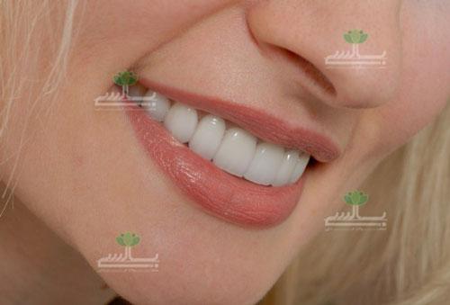 عکس دندان های سفید